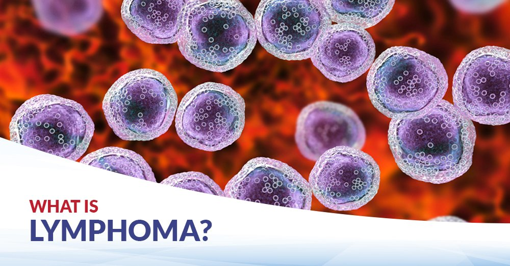 Lymphoma, Blood Cancer, What is Lymphoma