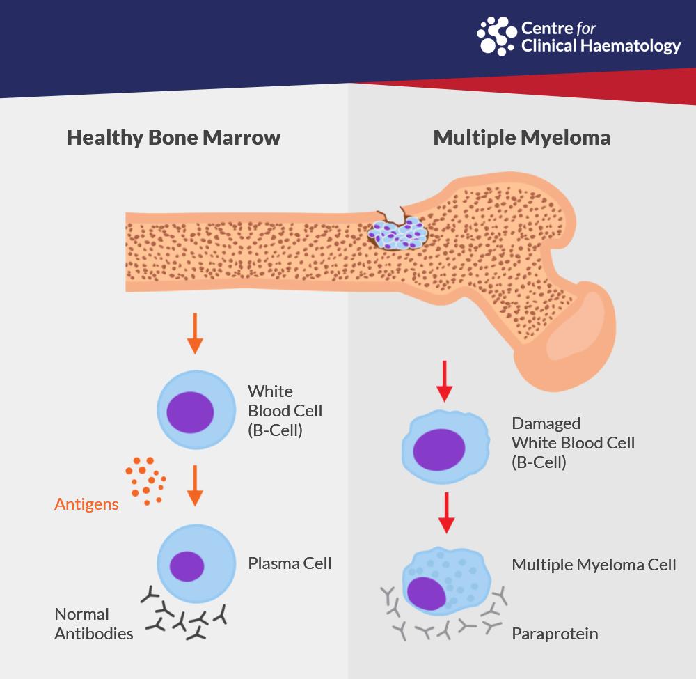 Healthy Bone Marrow, Multiple Myeloma, What is Myeloma